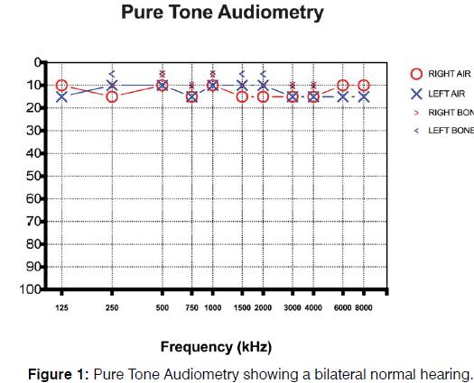Tinnitus-Antinitus-Tone-Audiometry