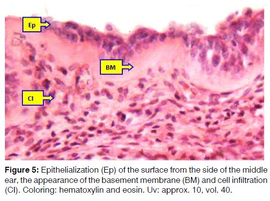Tinnitus-apithelialization
