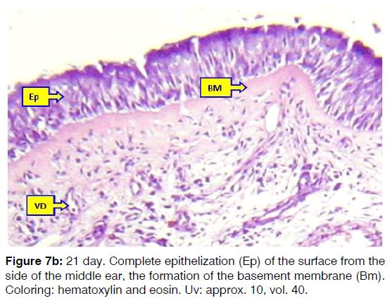 Tinnitus-basement-membrane