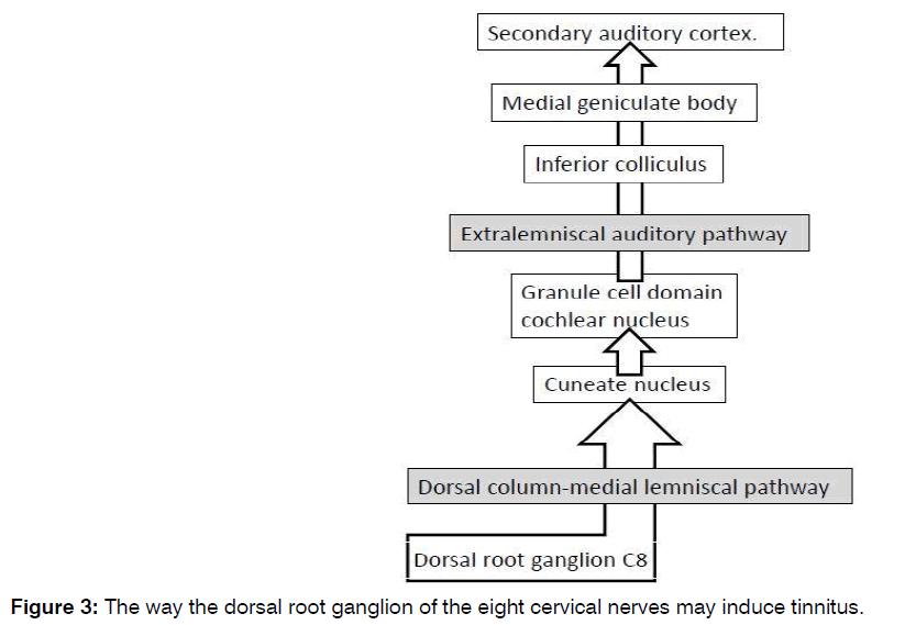 Tinnitus-cervical-nerves
