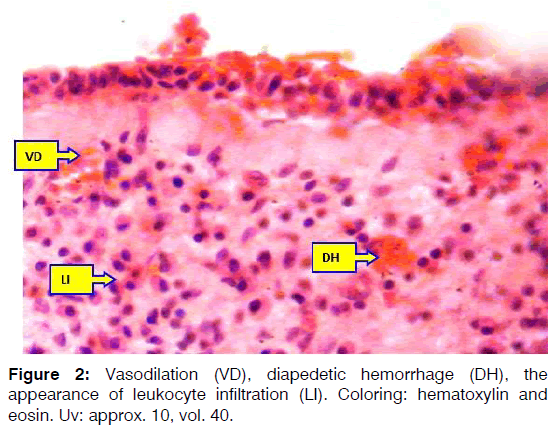 Tinnitus-diapedetic-hemorrhage