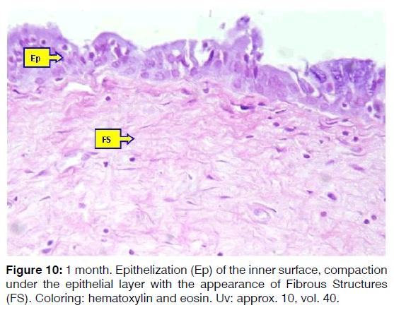 Tinnitus-epithelial-layer