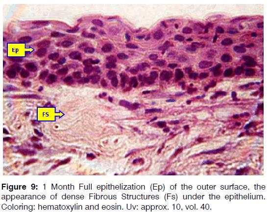 Tinnitus-fibrous-structures