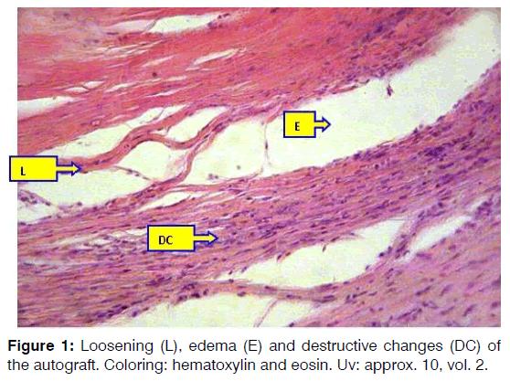 Tinnitus-hematoxylin