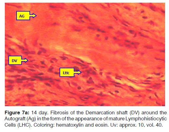 Tinnitus-mature-lymphohistiocytic