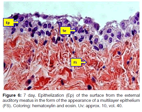 Tinnitus-multilayer-epithelium
