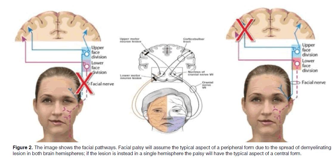 Tinnitus-peripheral