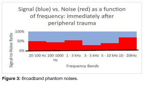 Tinnitus-phantom-noises