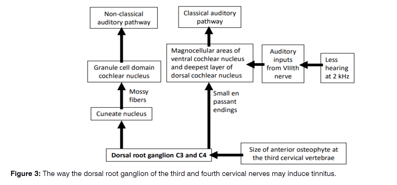 Tinnitus-root-ganglion