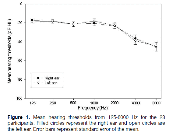 Tinnitus-thresholds