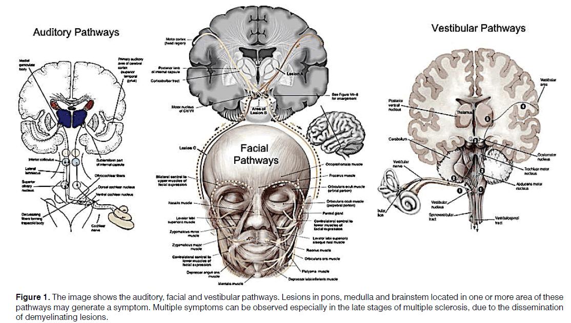 Tinnitus-vestibular