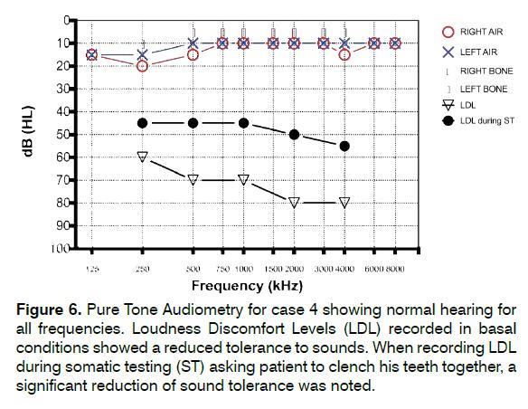 tinnitus-Loudness-Discomfort-Levels