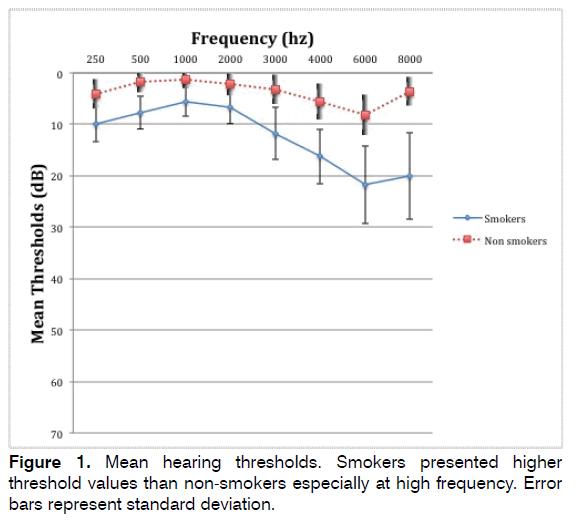 tinnitus-Mean-hearing-thresholds