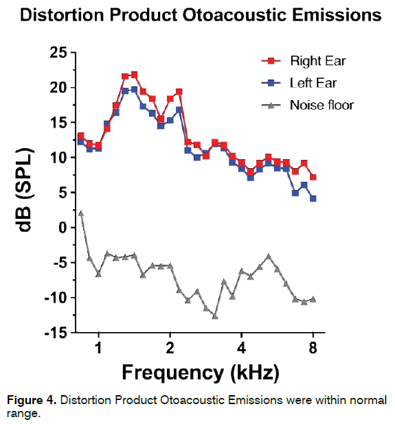 tinnitus-Product-Otoacoustic-Emissions