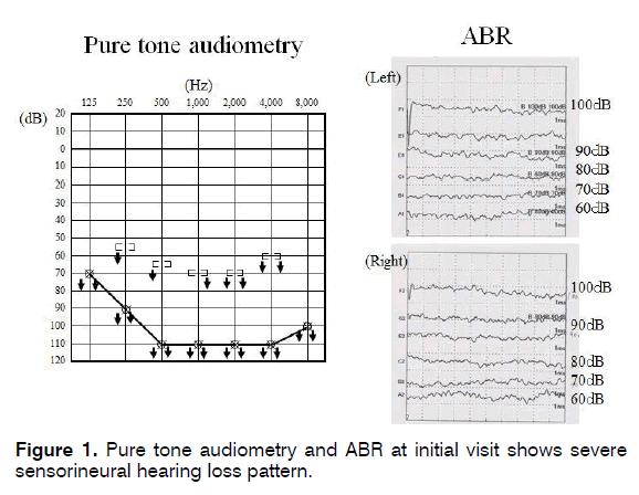 tinnitus-Pure-tone-audiometry