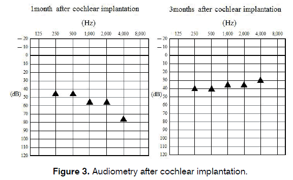 tinnitus-cochlear-implantation