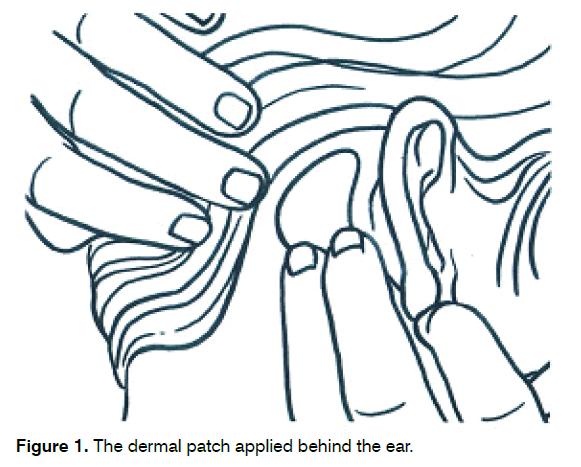 tinnitus-dermal-patch-applied