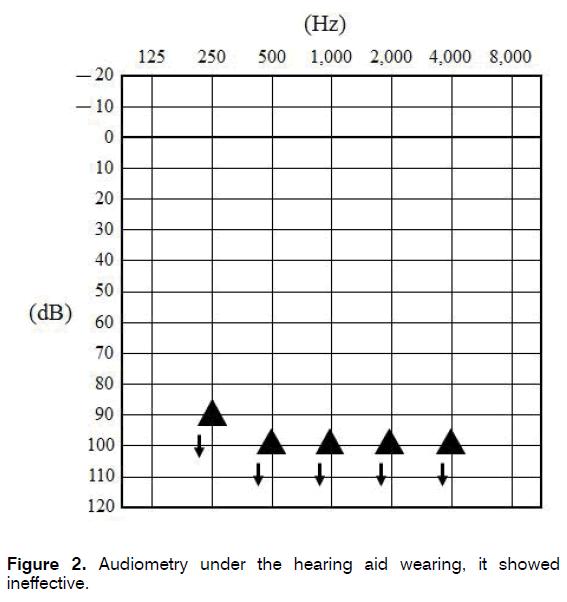 tinnitus-hearing-aid-wearing