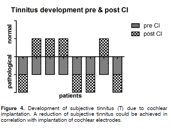 tinnitus-implantation-cochlear-electrodes