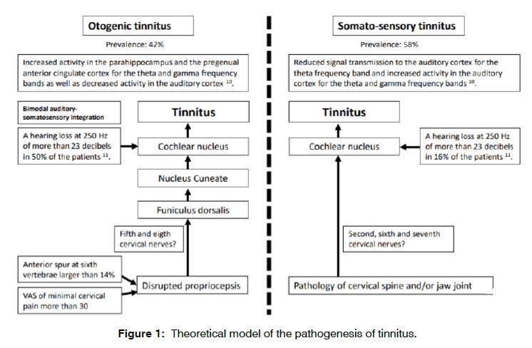 tinnitus-theoretical-model
