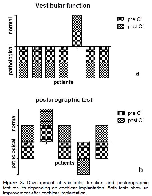 tinnitus-vestibular-function-posturographic